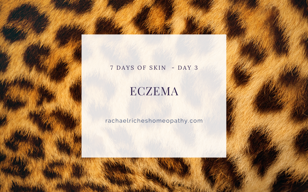 Eczema – Help is out there.